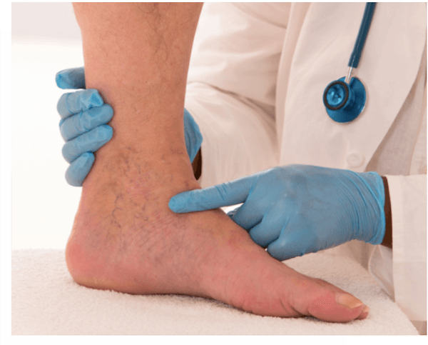 Amputation prevention by Vascular Specialist in Los Angeles, California